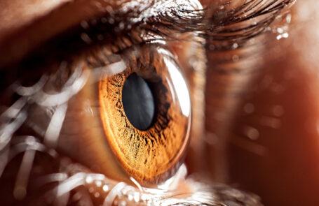 Blinder Fleck im Auge
